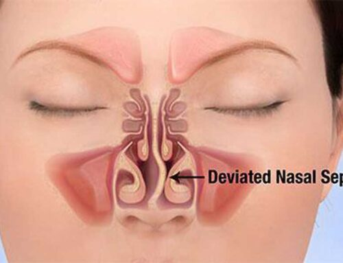 Deviated Septum the Ultimate Guide to Treatments